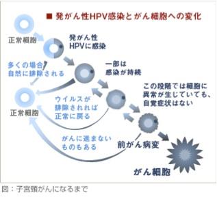 HPV癌化